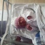 second baby after vasectomy reversal